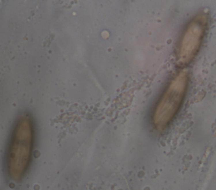 Xerocomus_ripariellus 8.jpg