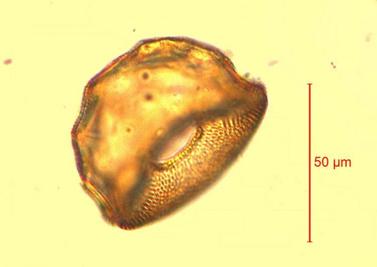 Arcella conica.jpg