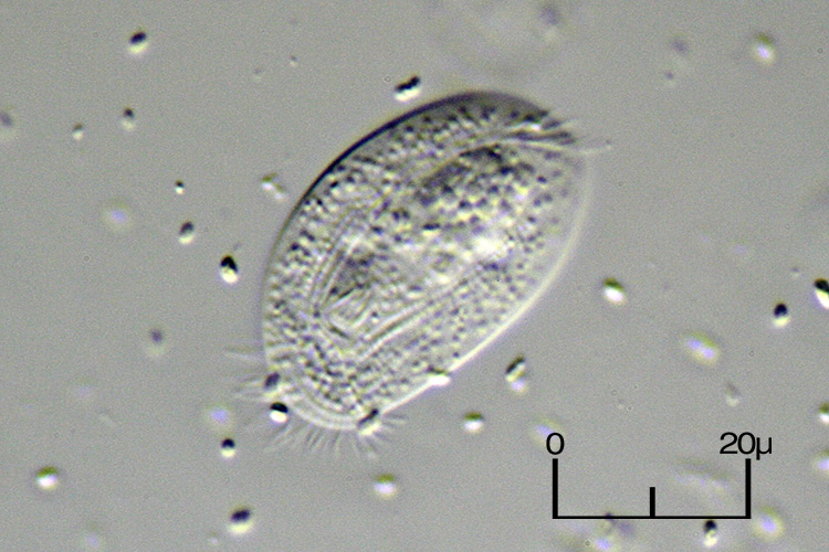 Chilodonella03.jpg