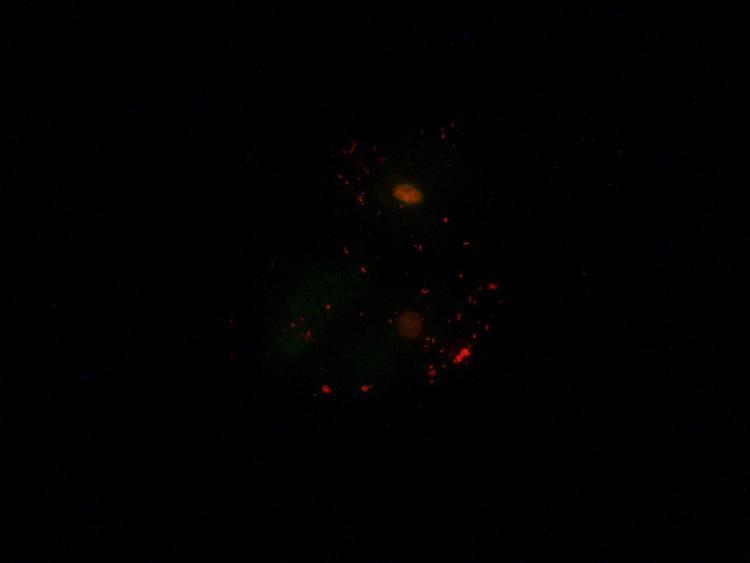 Cellules jugales acridine orange 1 x400.jpg