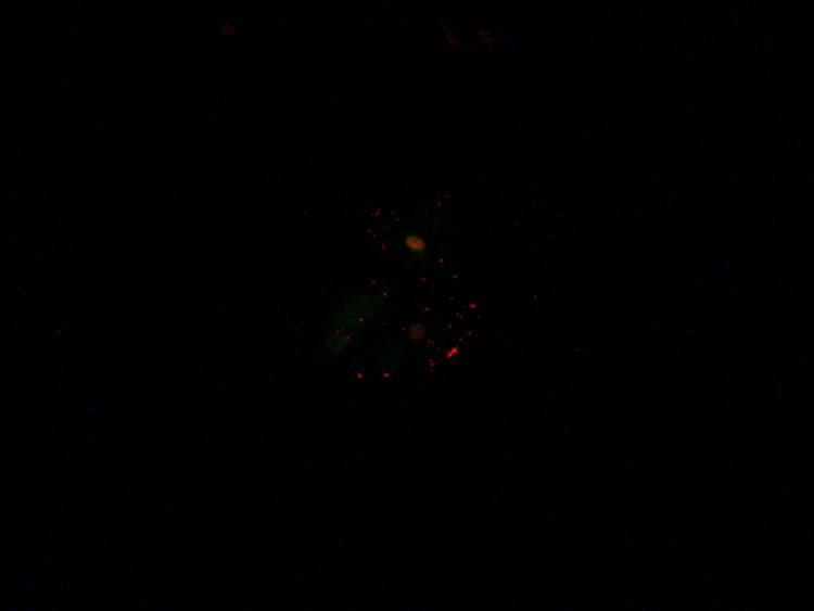 Cellules jugales acridine orange 1 x250.jpg