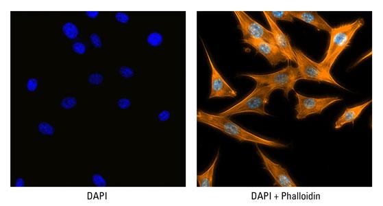 DAPI-002-Phalloidin-559px5.jpg