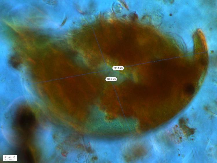 cladocereAlonaGuttata_280_PHRAUS_X400_DIC_IX70_20151006_Lugolé_4_m.jpg