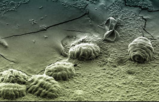 tardigradesu.jpg