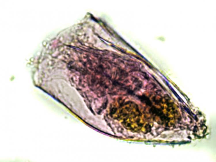 anuraeopsis1.jpg