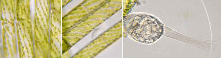 cilié-Stylonychia-spirogyre.jpg