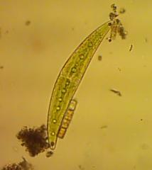 Closterium_sp01.jpg