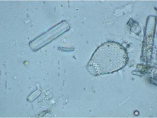 Euglypha_ciliata11.jpg