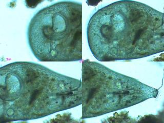 stentor_diatomophage.jpg